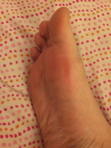 I am not making this up. My poor feet after my run! Instant blisters.
